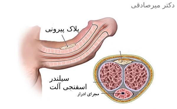 بیماری پیرونی در مردان